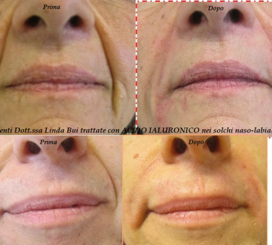 Filler Acido Ialuronico Dott.ssa Linda Bui