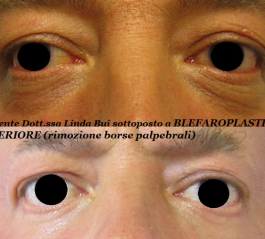 Blefaroplastica Dott.ssa Linda Bui