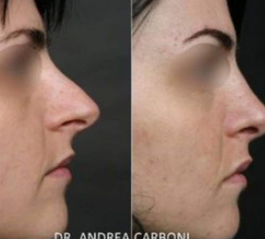 Rinoplastica Dr Andrea Carboni