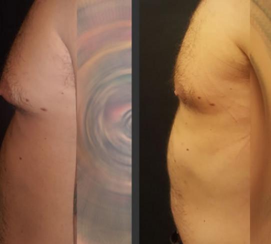 Ginecomastia  Dr Andrea Carboni
