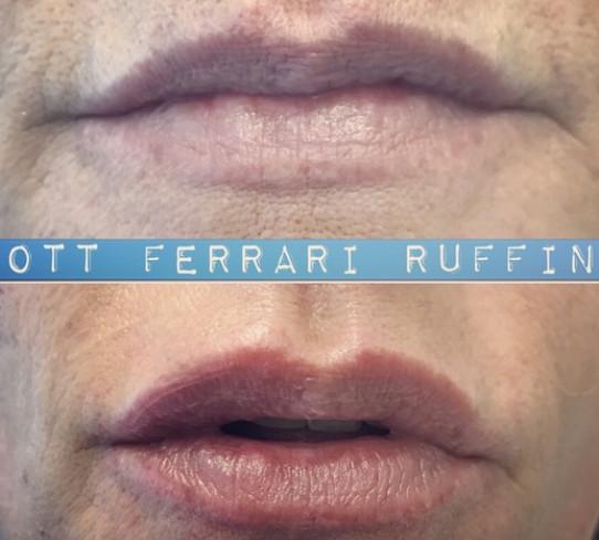 Filler acido ialuronico  Dott Salvatore Ferrari Ruffino