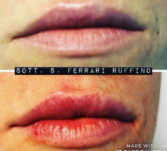 Filler Labbra Dott. Ferrari Ruffino Salvatore