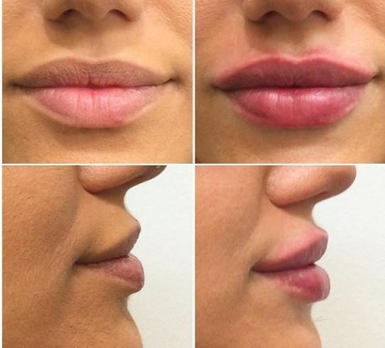 Filler Labbra Dott.ssa Carolina Turcan
