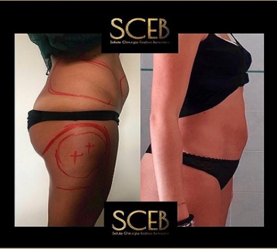 Liposuzione centro Sceb