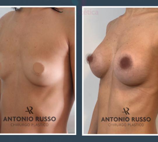 Mastoplastica additiva Dr Antonio Russo