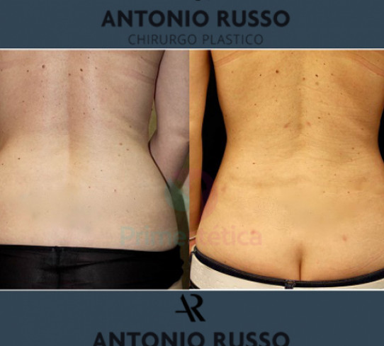 Lipoaspirazione Dr. Antonio Russo