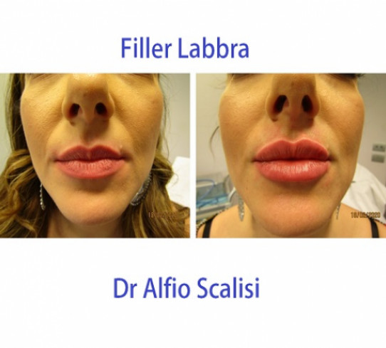 Filler labbra  Dr Alfio Scalisi
