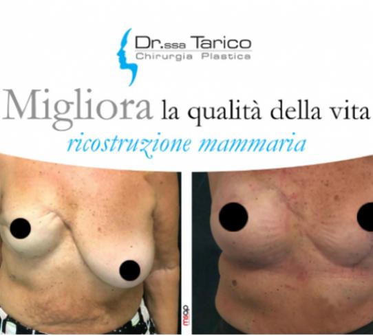 Ricostruzione mammaria  Dott.ssa Tarico