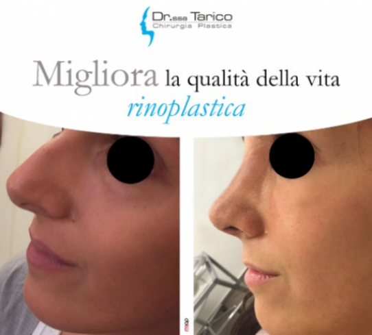 Rinoplastica Dott.ssa Tarico