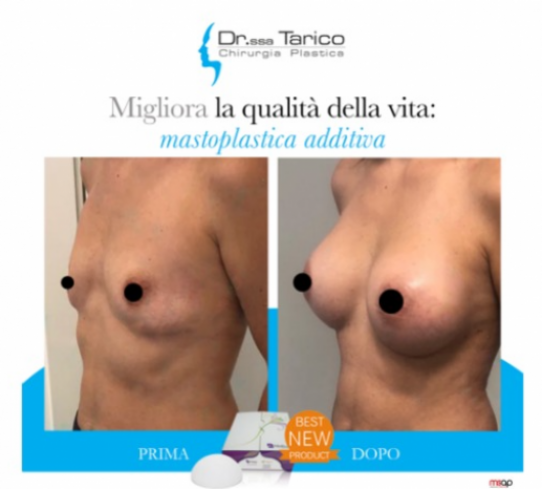 Mastoplastica additiva Dott.ssa Tarico