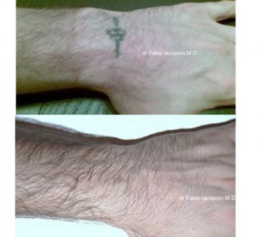 Rimozione tatuaggi Dott. Fabio Iacoponi