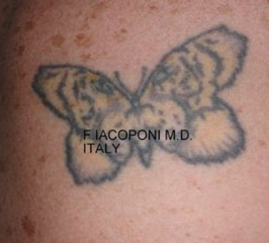 Dott. Fabio Iacoponi  Rimozione tatuaggio  (prima)