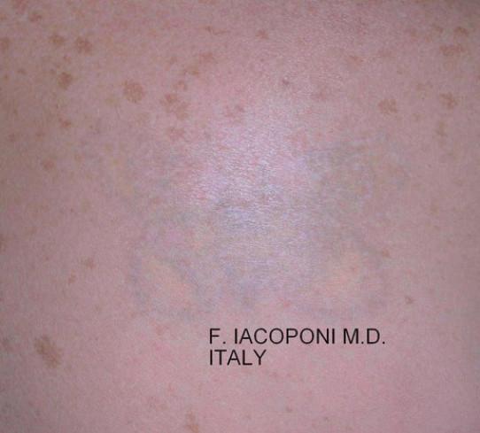 Dott. Fabio Iacoponi  Rimozione tatuaggio  (Dopo)