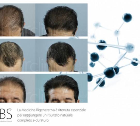 Medicina rigenerativa HairClinic