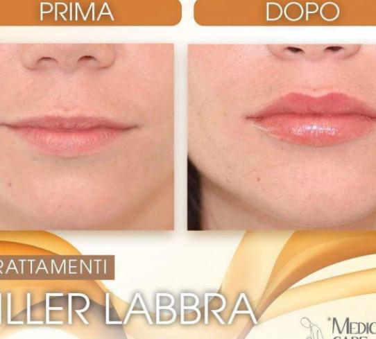 Filler Labbra Dott.ssa Alessia Canonaco