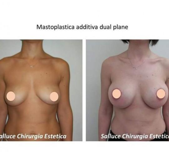 Mastoplastica additiva Dott. Stefano Salluce