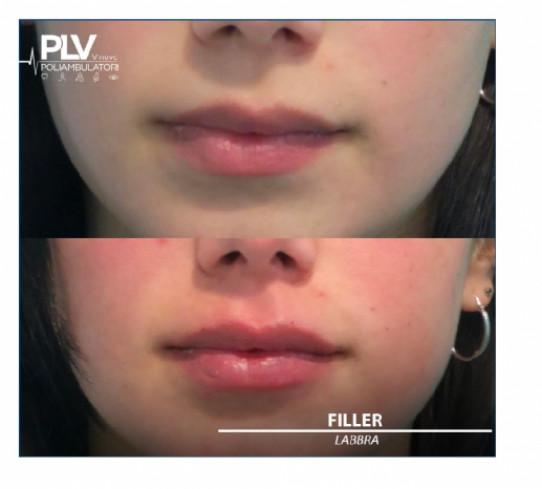 Filler labbra a Torino PLV VNOVO