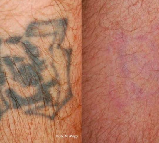 Eliminazione tatuaggio a Torino     Dott. Giulio Maria Maggi
