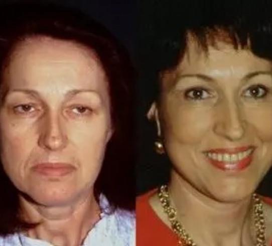 Blefaroplastica  prima e dopo trattamento