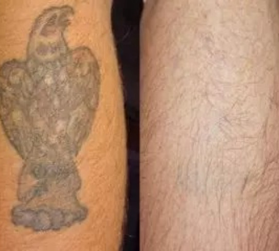 Rimozione tatuaggio a Bologna