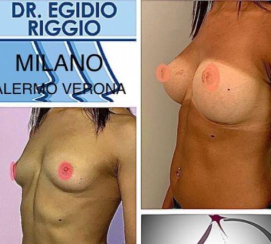 Mastoplastica additiva Dr. Egidio Riggio